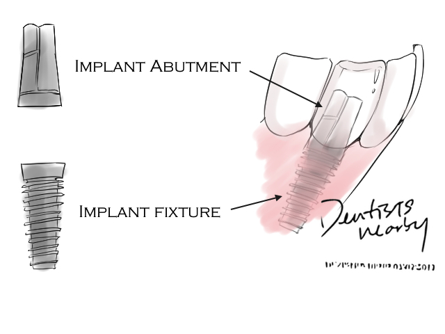 Implant article dentistsnearby1