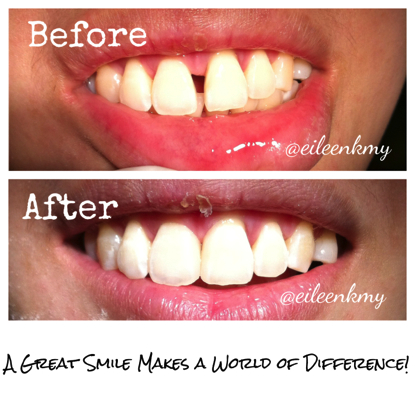 COmposite bondings veneers dentistsnearby