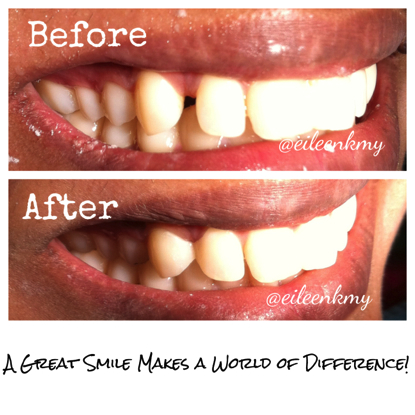 Composite bondings veneers dentistsnearby2