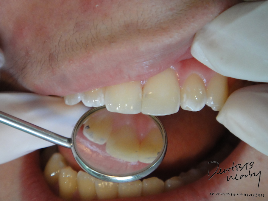 after composite dentistsnearby