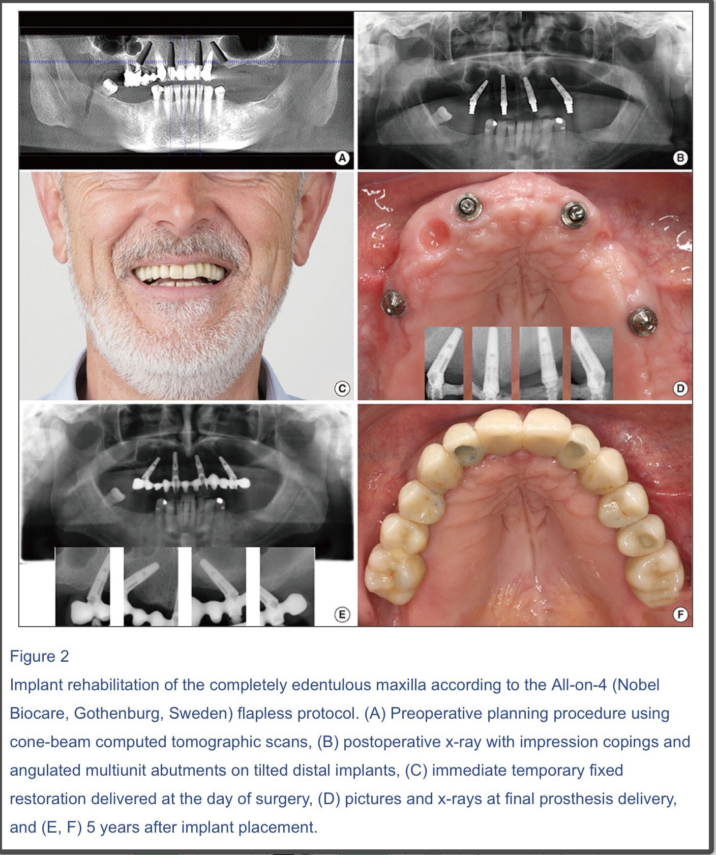 immediate-implants-dr-kam-dentistsnearby