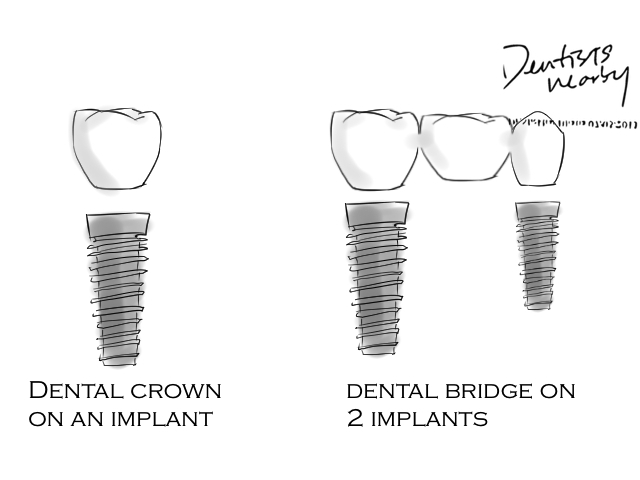 implant Article dentistsnearby-com3