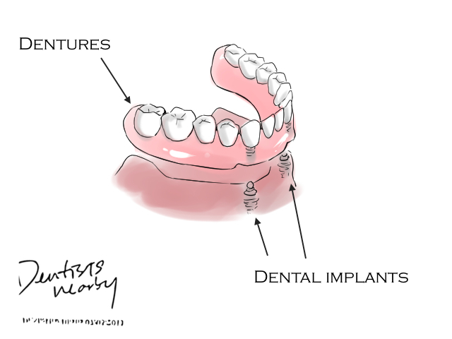 implant article dentistsnearby4