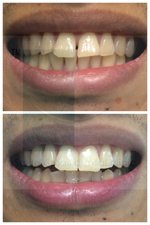 usmile-ismile-aesthetic-dentistry-before-after