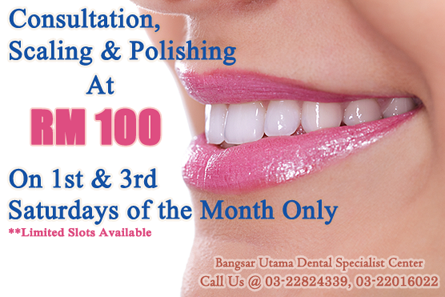ScalingPolishing DentalPromotionBangsar-Utama-dental-specialist-center-dentistsnearby-1