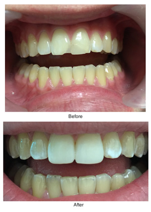 composite-bonding-before-after-vertical