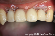 dental-implant-lee-soon-boon-dentistsnearby2