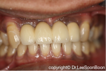 dental-implant-lee-soon-boon-dentistsnearby7