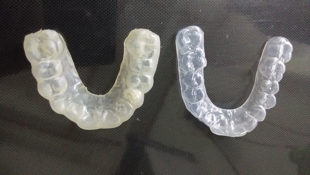 edward-tay-bruxism-appliance-1