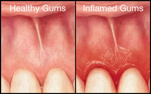 Healthy-vs-inflamed-gums-dentistsnearby