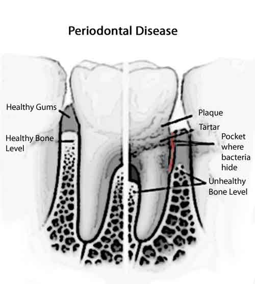 Everything You Need To Know About Gum Diseases